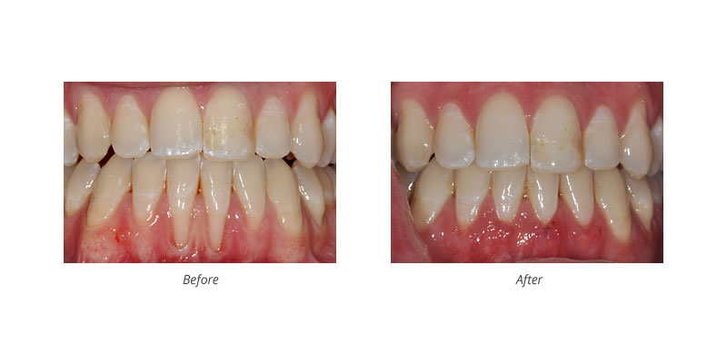 gum tissue graft before and after